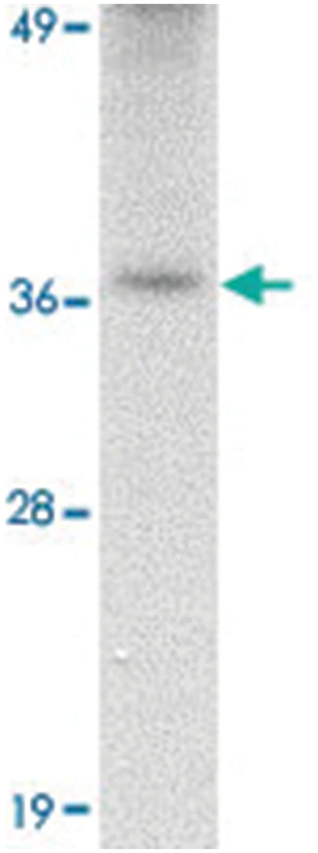 TREX2, Rabbit, Polyclonal Antibody, Abnova 100µg; Unlabeled:Life Sciences