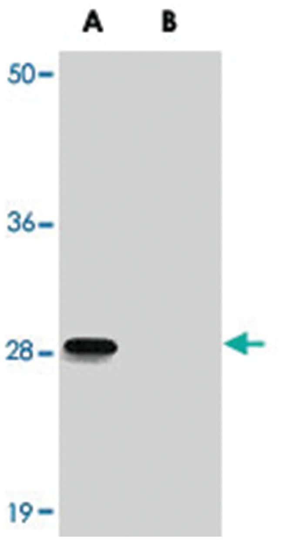 ANKRD54, Rabbit, Polyclonal Antibody, Abnova 100µg; Unlabeled:Life