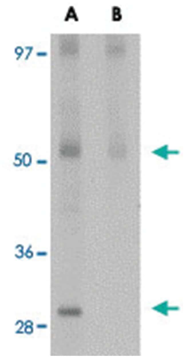 JMJD4 Rabbit anti-Human, Rat, Polyclonal Antibody, Abnova 100µg; Unlabeled:Life