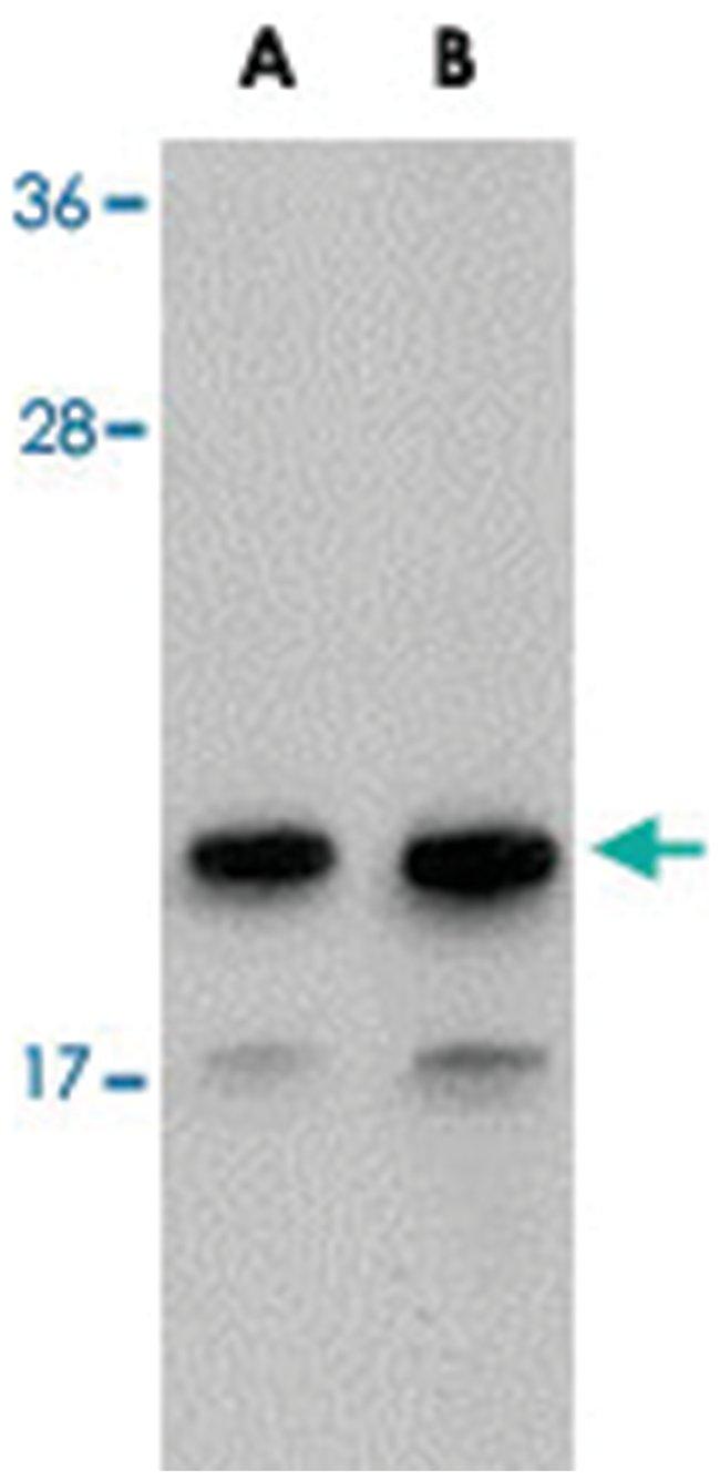 NDUFAF2, Rabbit, Polyclonal Antibody, Abnova 100µg; Unlabeled:Life
