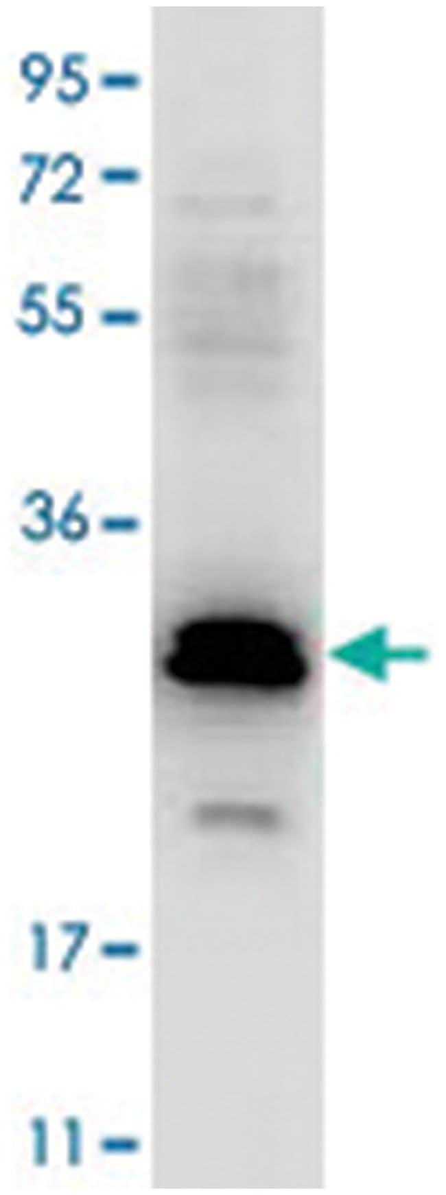 CCL20, Rabbit, Polyclonal Antibody, Abnova 100µg; Unlabeled