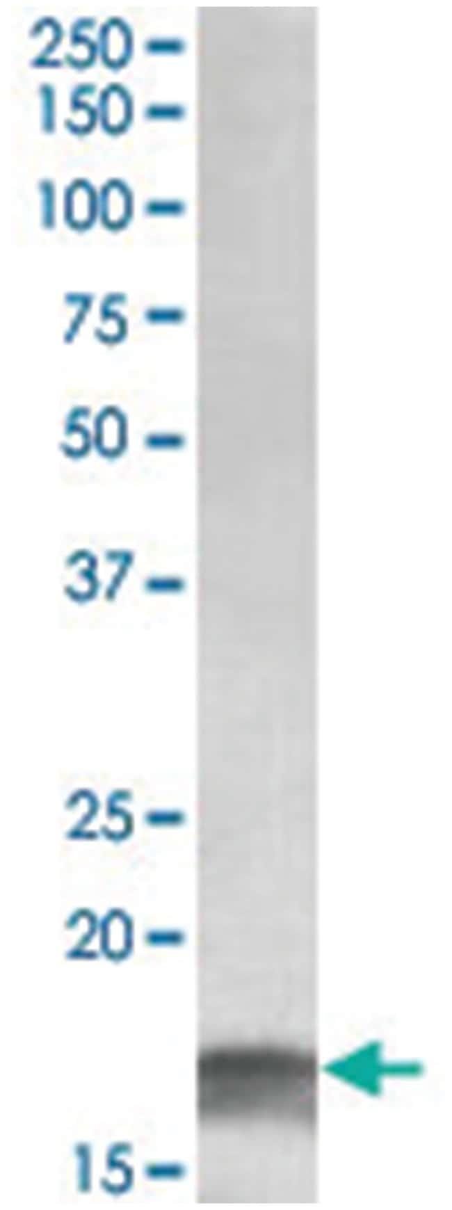 CDKN2A, Goat, Polyclonal Antibody, Abnova 100µg; Unlabeled:Life Sciences