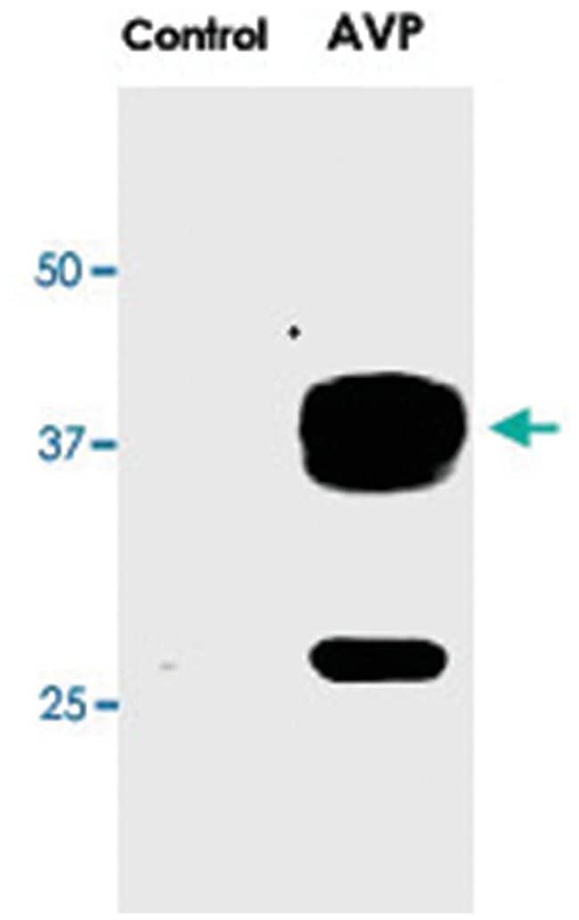 Aqp2 (phospho S269), Rabbit, Polyclonal Antibody, Abnova 100µL; Unlabeled:Life
