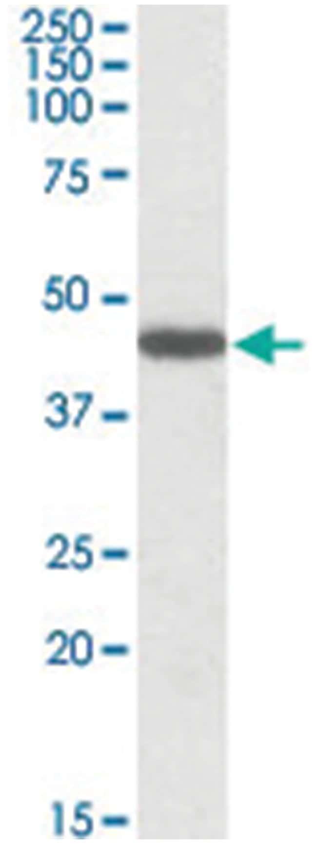 PROKR2, Goat, Polyclonal Antibody, Abnova 100µg; Unlabeled:Life Sciences