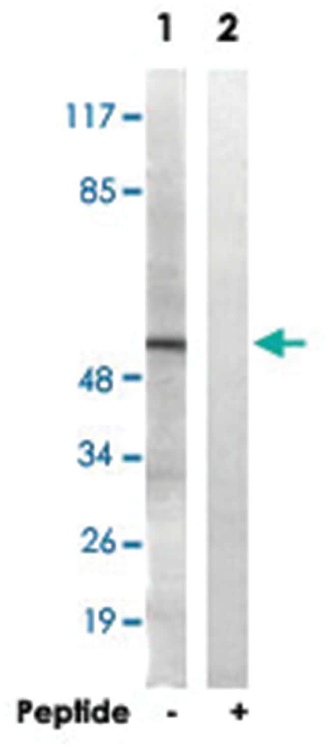 APLF, Rabbit, Polyclonal Antibody, Abnova 100µg; Unlabeled:Life Sciences