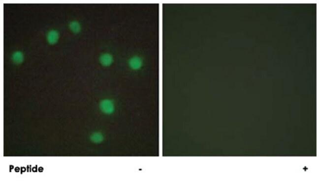 NKX6-3 Rabbit anti-Human, Mouse, Polyclonal Antibody, Abnova 100µg;