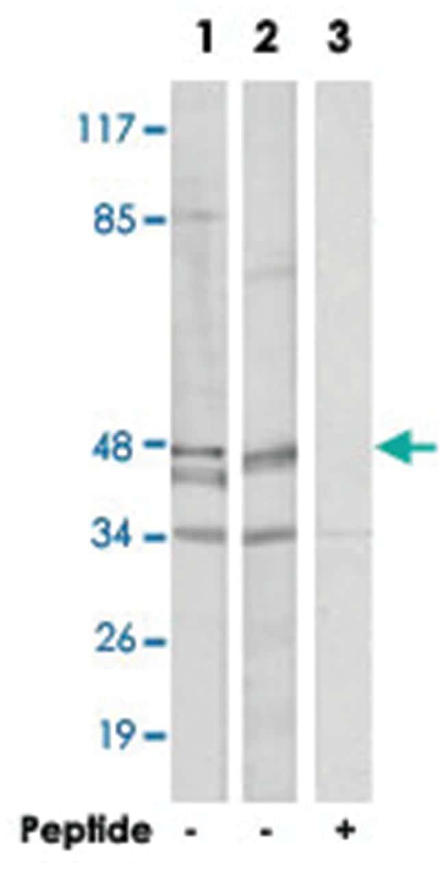 TADA2A, Rabbit, Polyclonal Antibody, Abnova 100µg; Unlabeled:Life