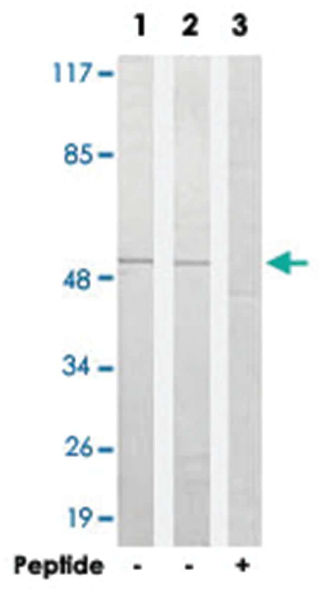 SUPT3H Rabbit anti-Human, Polyclonal Antibody, Abnova 100µg; Unlabeled:Life