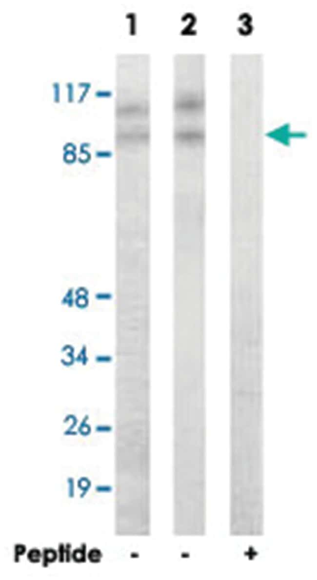CDK11B, Rabbit, Polyclonal Antibody, Abnova 100µg; Unlabeled:Life