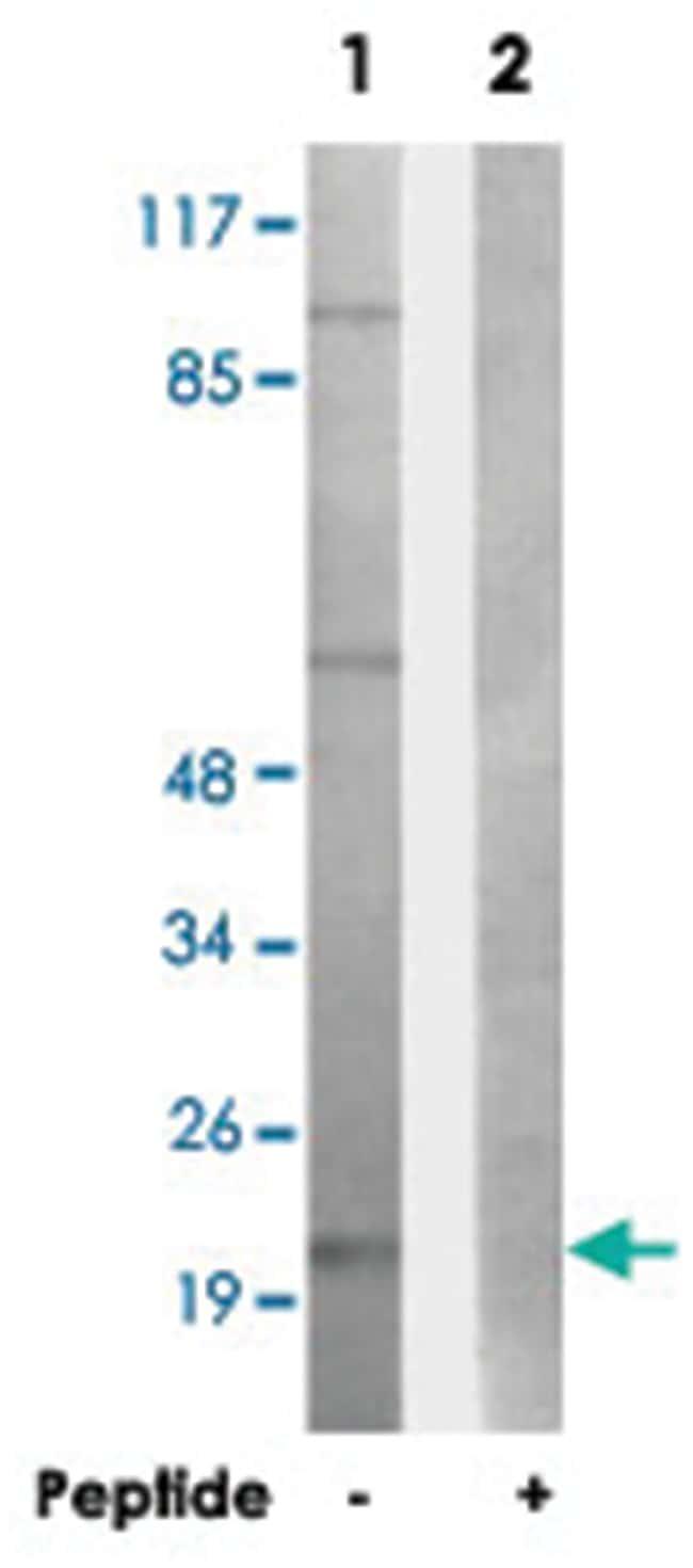 LTB Rabbit anti-Human, Mouse, Polyclonal Antibody, Abnova 100µg; Unlabeled:Life