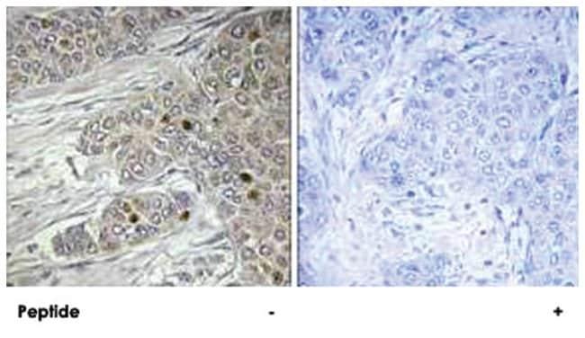 TTF1 Rabbit anti-Human, Polyclonal Antibody, Abnova 100µg; Unlabeled:Life
