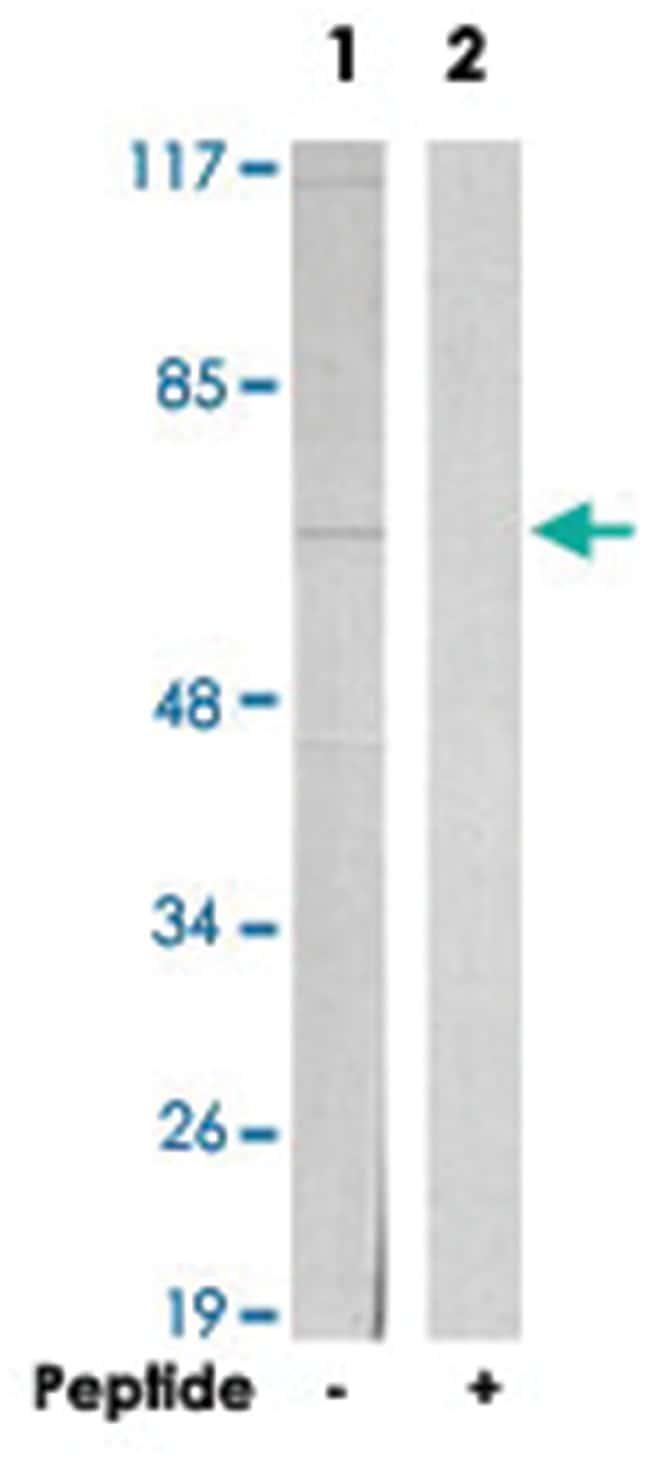 TRIP4 Rabbit anti-Human, Mouse, Polyclonal Antibody, Abnova 100µg;