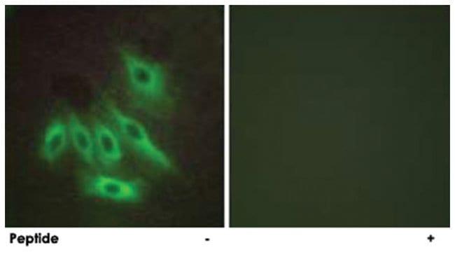 MUC16, Rabbit, Polyclonal Antibody, Abnova 100µg; Unlabeled