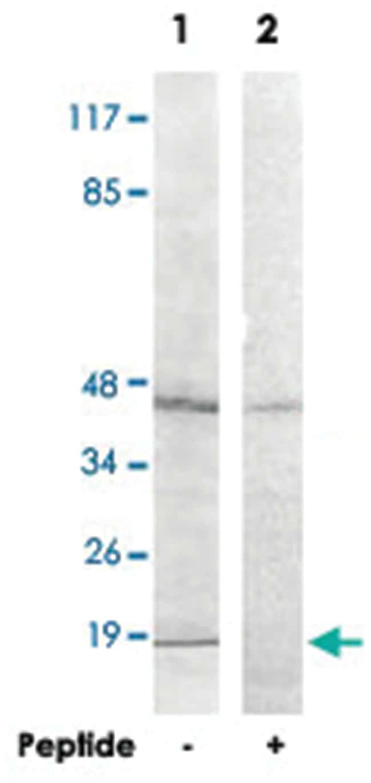 HIST1H2BH Rabbit anti-Human, Mouse, Polyclonal Antibody, Abnova 100µg;