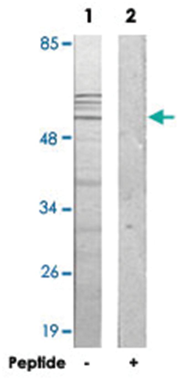 IP6K3, Rabbit, Polyclonal Antibody, Abnova 100µg; Unlabeled:Life Sciences