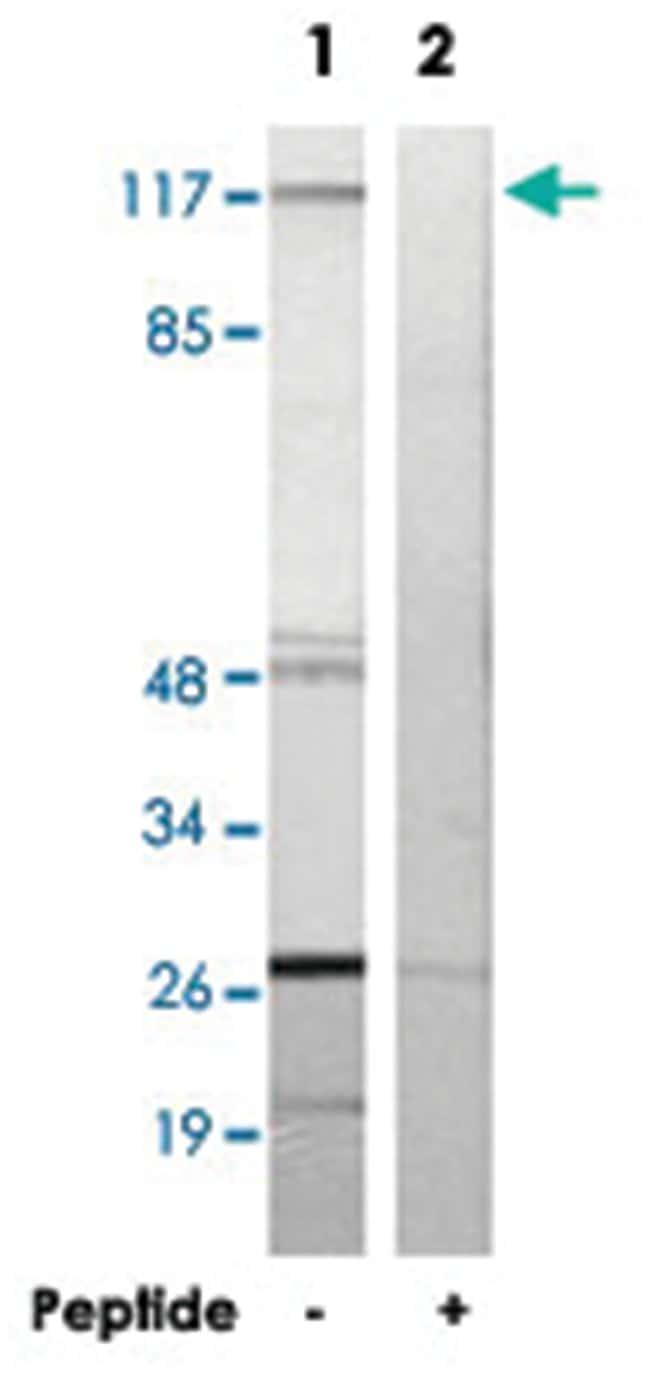 RPS6KC1, Rabbit, Polyclonal Antibody, Abnova 100µg; Unlabeled:Life