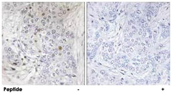 MAFF, Rabbit, Polyclonal Antibody, Abnova 100µg; Unlabeled:Life Sciences