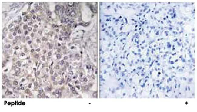 CYP4F2, Rabbit, Polyclonal Antibody, Abnova 100µg; Unlabeled:Life