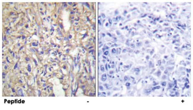 LAMB1 Rabbit anti-Human, Mouse, Polyclonal Antibody, Abnova 100µg;