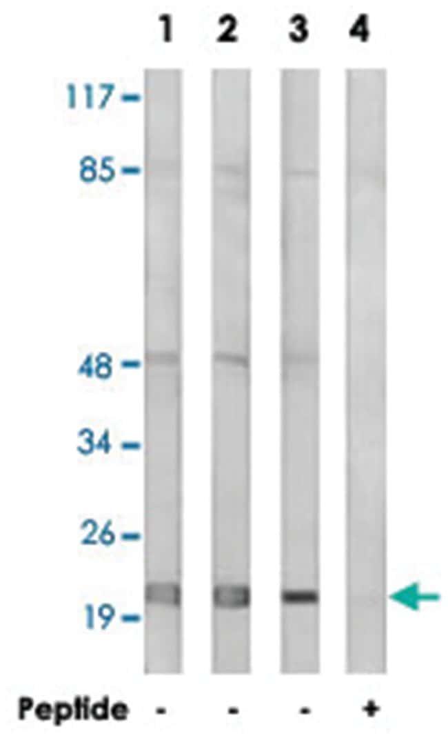MRPL32, Rabbit, Polyclonal Antibody, Abnova 100µg; Unlabeled:Life