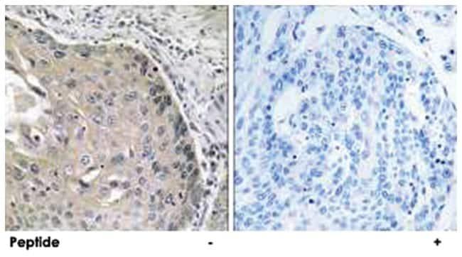 AOX1 Rabbit anti-Human, Rat, Polyclonal Antibody, Abnova 100µg; Unlabeled:Life