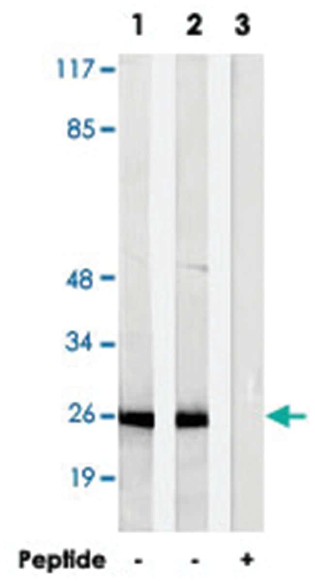 AKR1E2, Rabbit, Polyclonal Antibody, Abnova 100µg; Unlabeled:Life
