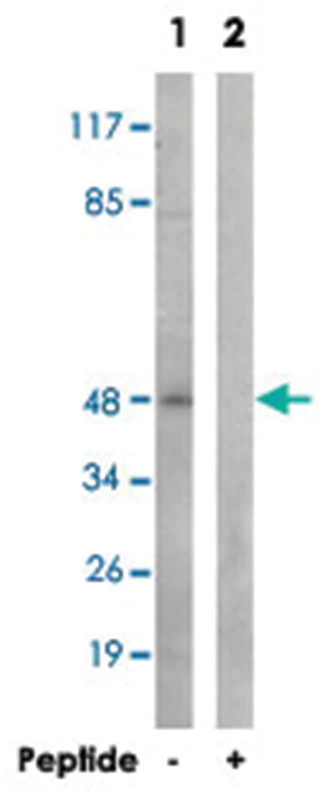 TMEM237, Rabbit, Polyclonal Antibody, Abnova 100µg; Unlabeled:Life