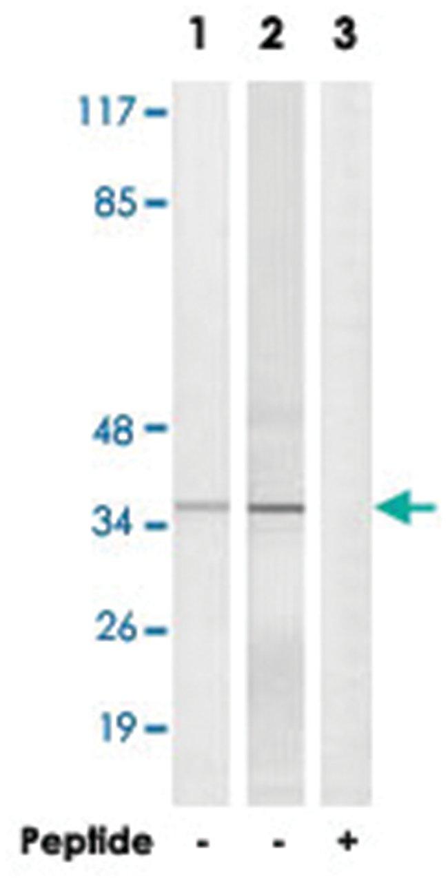 ELOVL1 Rabbit anti-Human, Mouse, Polyclonal Antibody, Abnova 100µg;