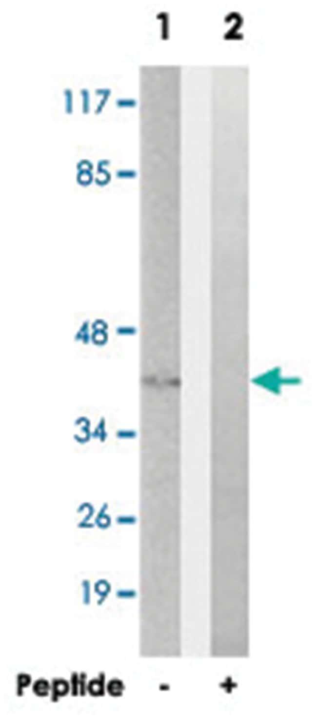 GNAT2, Rabbit, Polyclonal Antibody, Abnova 100µg; Unlabeled:Life Sciences