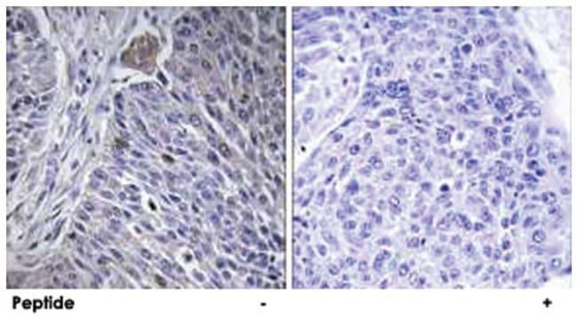 HNRPDL, Rabbit, Polyclonal Antibody, Abnova 100µg; Unlabeled:Life