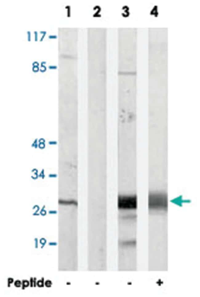 LDLRAD2 Rabbit anti-Human, Polyclonal Antibody, Abnova 100µg; Unlabeled:Life