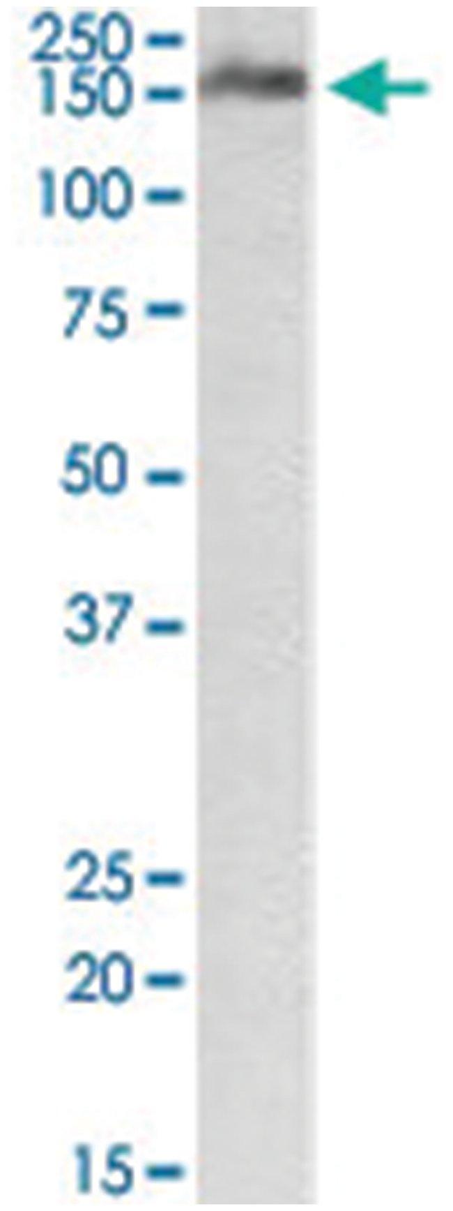 CSMD1, Goat, Polyclonal Antibody, Abnova 100µg; Unlabeled:Life Sciences