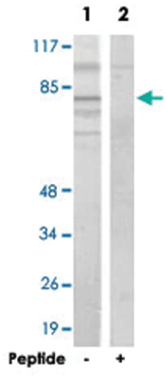 ADD2, Rabbit, Polyclonal Antibody, Abnova 100µg; Unlabeled:Life Sciences
