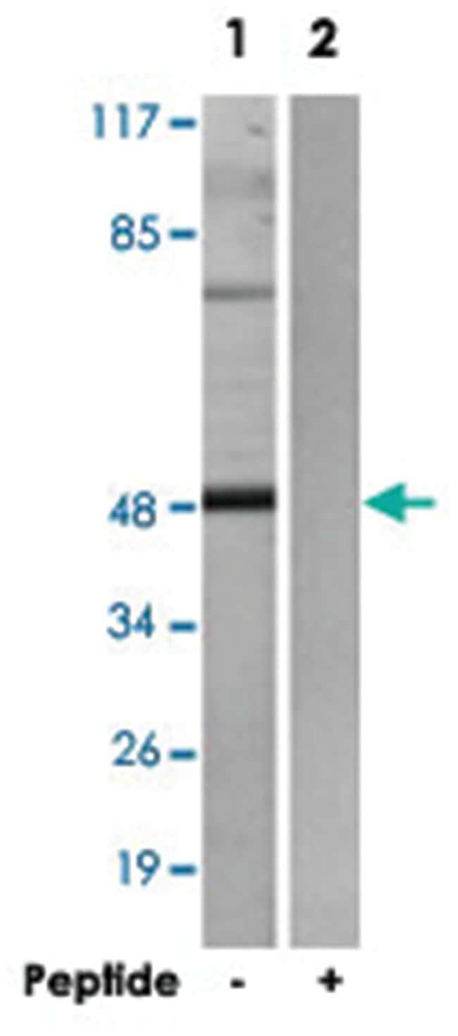ADRB2 Rabbit anti-Human, Polyclonal Antibody, Abnova 100µg; Unlabeled:Life