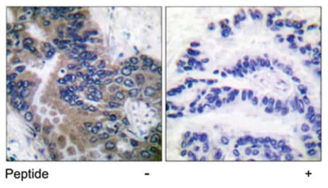 APAF1 Rabbit anti-Human, Polyclonal Antibody, Abnova 100µg; Unlabeled:Life