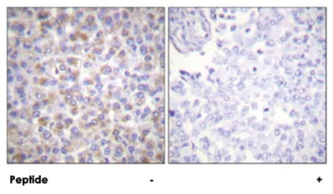 YWHAZ Rabbit anti-Human, Mouse, Rat, Polyclonal Antibody, Abnova 100µg;