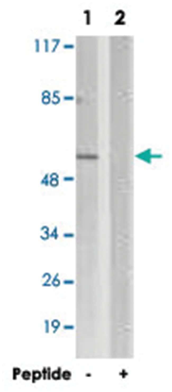 SGK1 Rabbit anti-Human, Mouse, Rat, Polyclonal Antibody, Abnova 100µg;