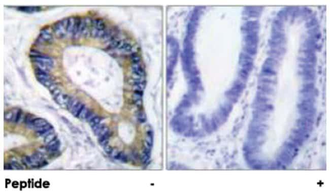 Eif4ebp1, Rabbit, Polyclonal Antibody, Abnova 100µg; Unlabeled:Life