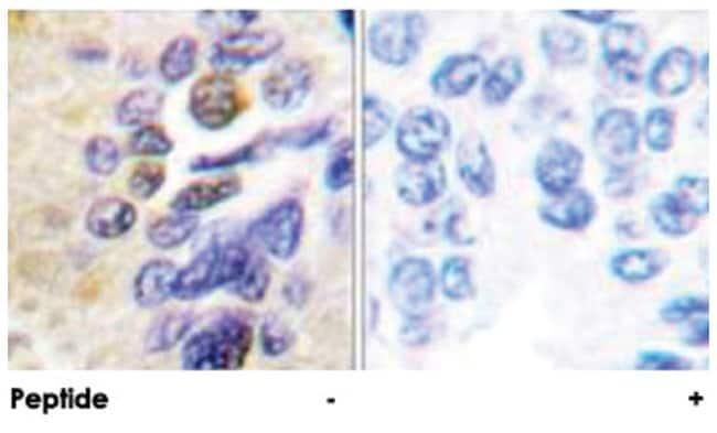 IKBKG Rabbit anti-Human, Polyclonal Antibody, Abnova 100µg; Unlabeled:Life