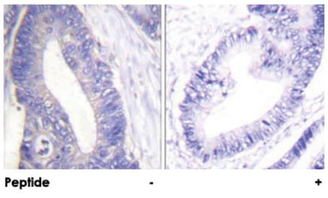 IRS1 Rabbit anti-Human, Mouse, Rat, Polyclonal Antibody, Abnova 100µg;