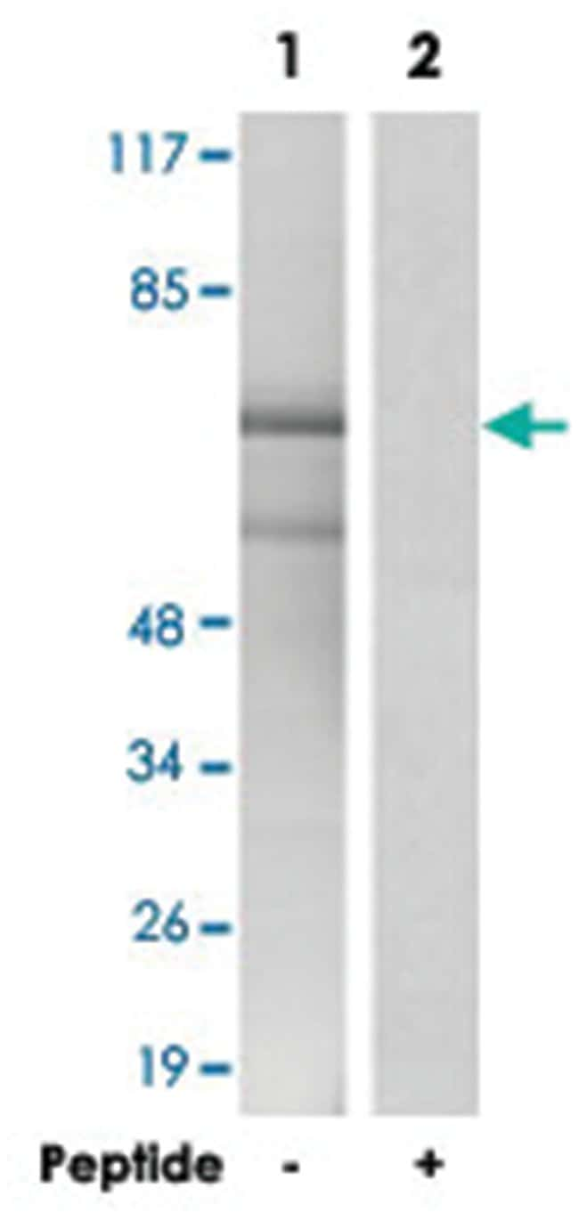ESR1 Rabbit anti-Human, Mouse, Rat, Polyclonal Antibody, Abnova 100µg;