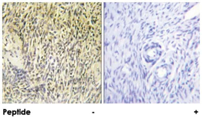 SYK Rabbit anti-Human, Mouse, Rat, Polyclonal Antibody, Abnova 100µg;