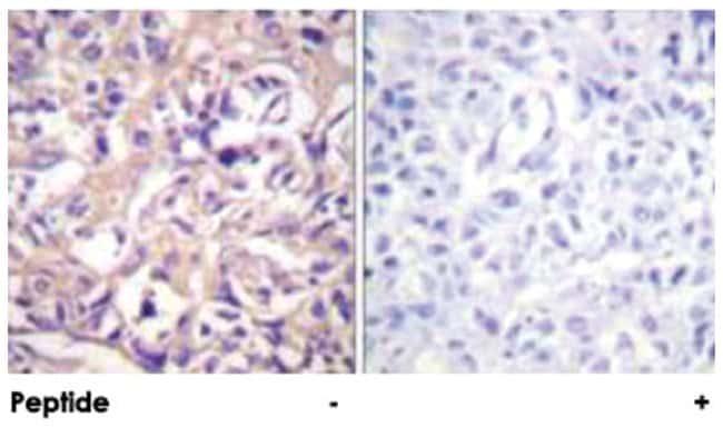 TK1 Rabbit anti-Human, Mouse, Rat, Polyclonal Antibody, Abnova 100µg;