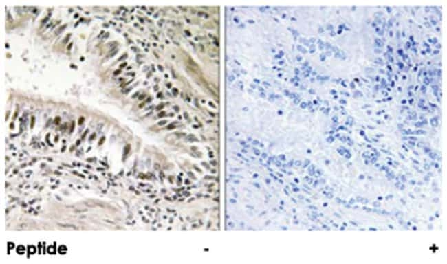 STK11 Rabbit anti-Human, Mouse, Polyclonal Antibody, Abnova 100µg;