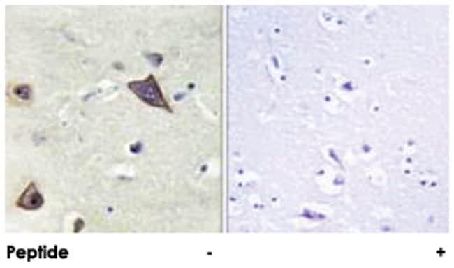 GRIN1 Rabbit anti-Human, Mouse, Rat, Polyclonal Antibody, Abnova 100µg;