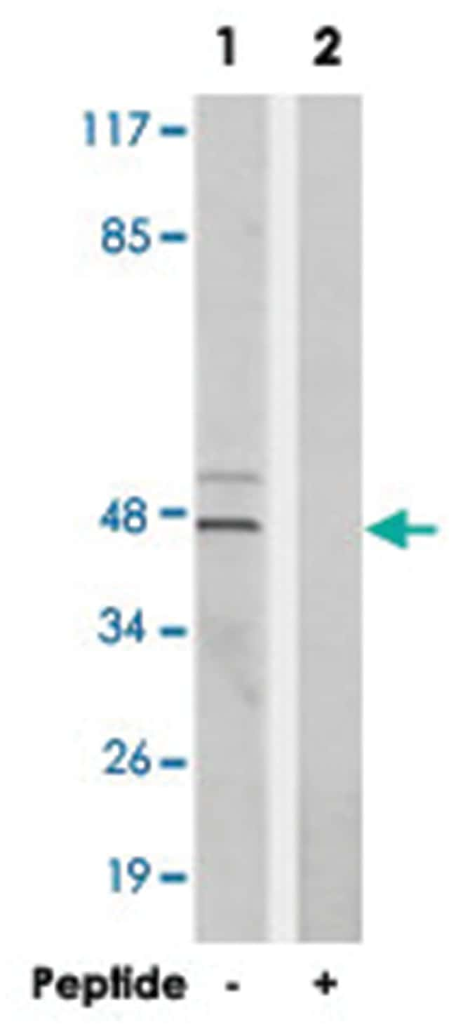 MAPK14 Rabbit anti-Human, Mouse, Rat, Polyclonal Antibody, Abnova 100µg;