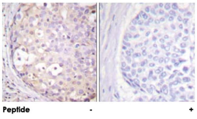 PRKCA/PRKCB/PRKCD/PRKCE/PRKCG/PRKCH/PRKCQ/PRKCZ, Rabbit, Polyclonal Antibody,