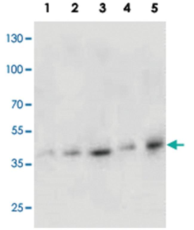 KRT19 Rabbit anti-Human, Polyclonal Antibody, Abnova 100µg; Unlabeled:Life
