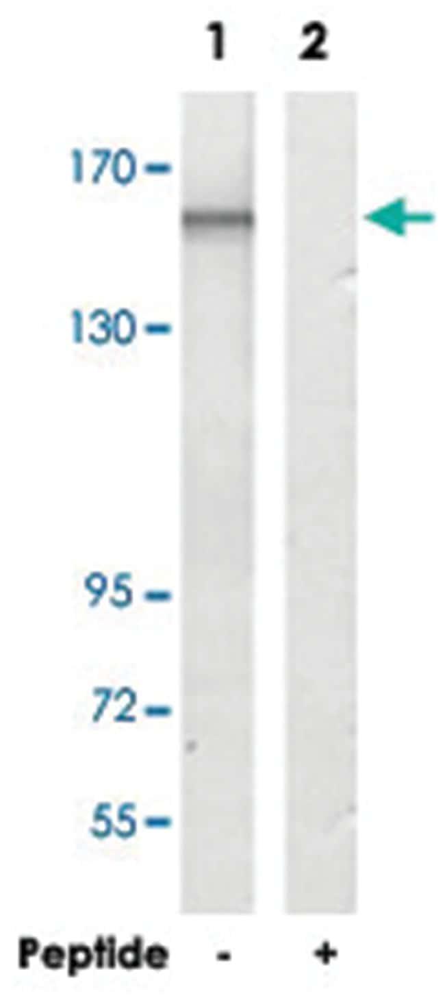IL6ST, Rabbit, Polyclonal Antibody, Abnova 100µg; Unlabeled:Life Sciences