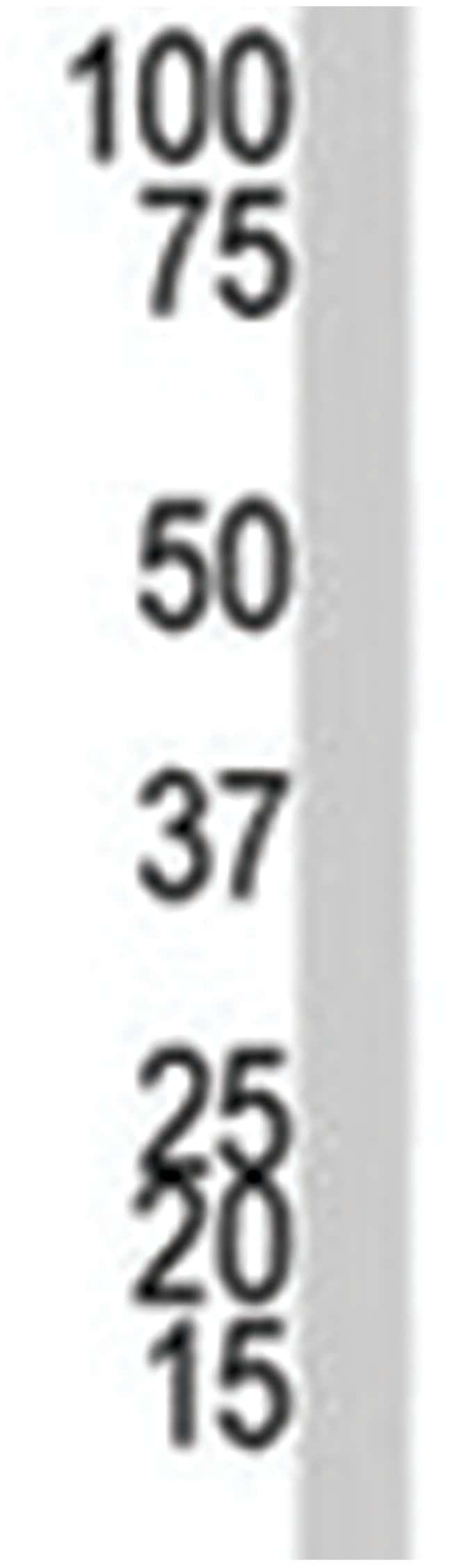 DNMT1 Rabbit anti-Human, Polyclonal Antibody, Abnova 400µL; Unlabeled:Life